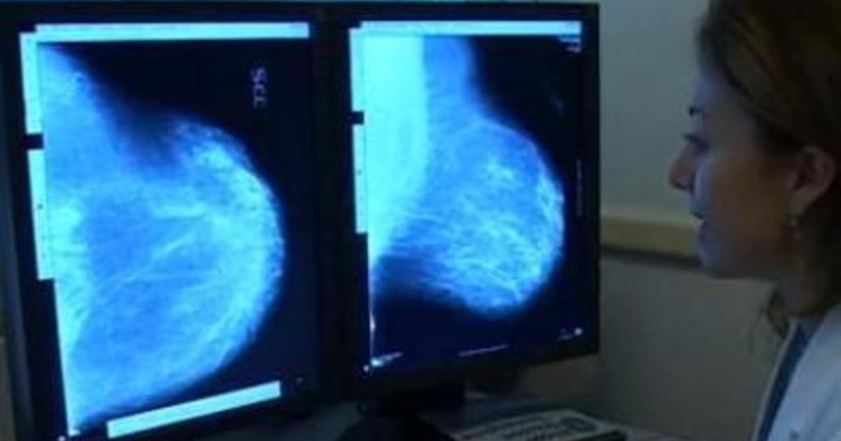 Tumori risposte a cura migliorano del 60 con mix immuno oncologico