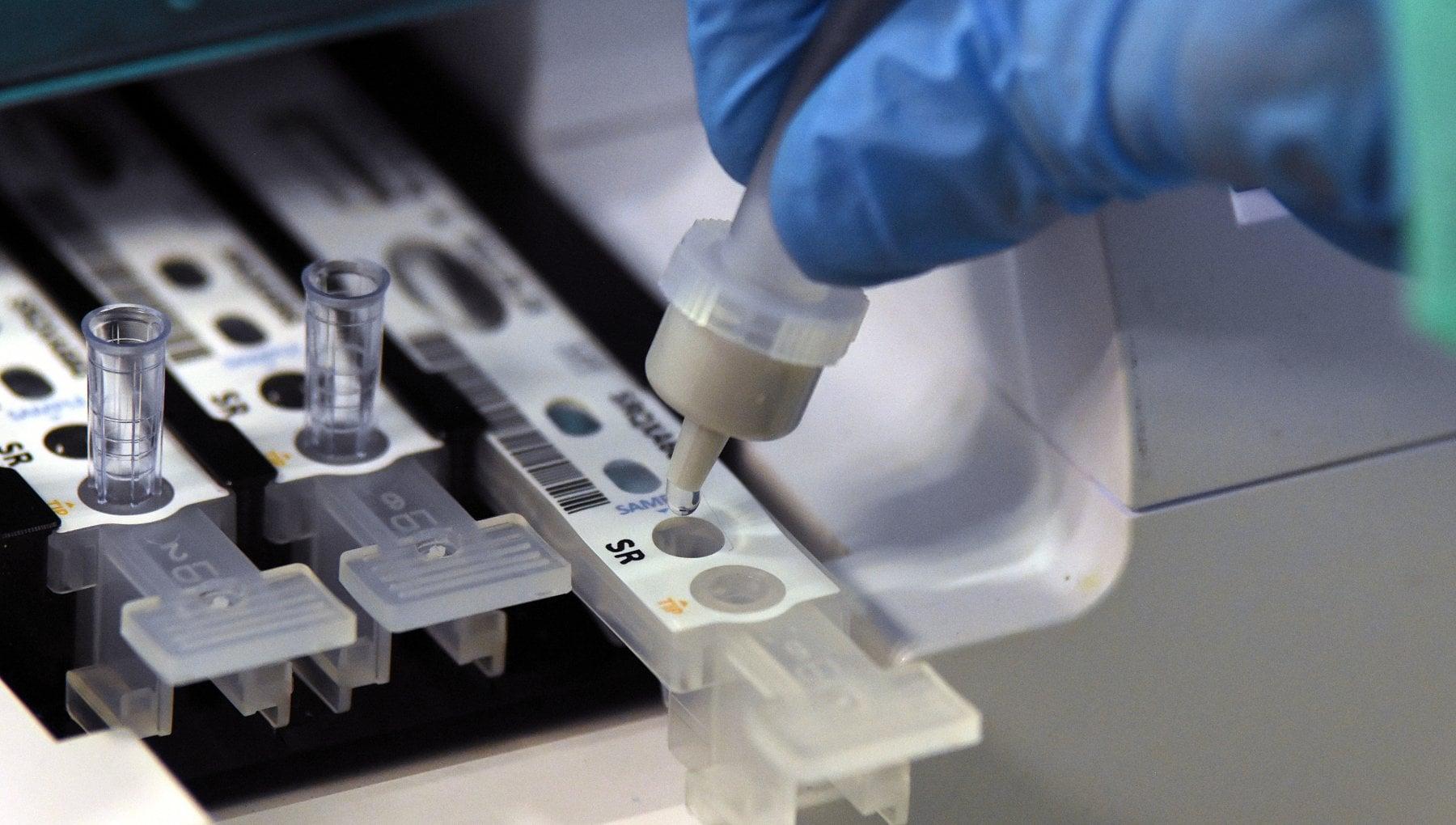 Coronavirus il bollettino di oggi 30 dicembre 16.202 nuovi casi su 169.045 tamponi. I morti sono 575