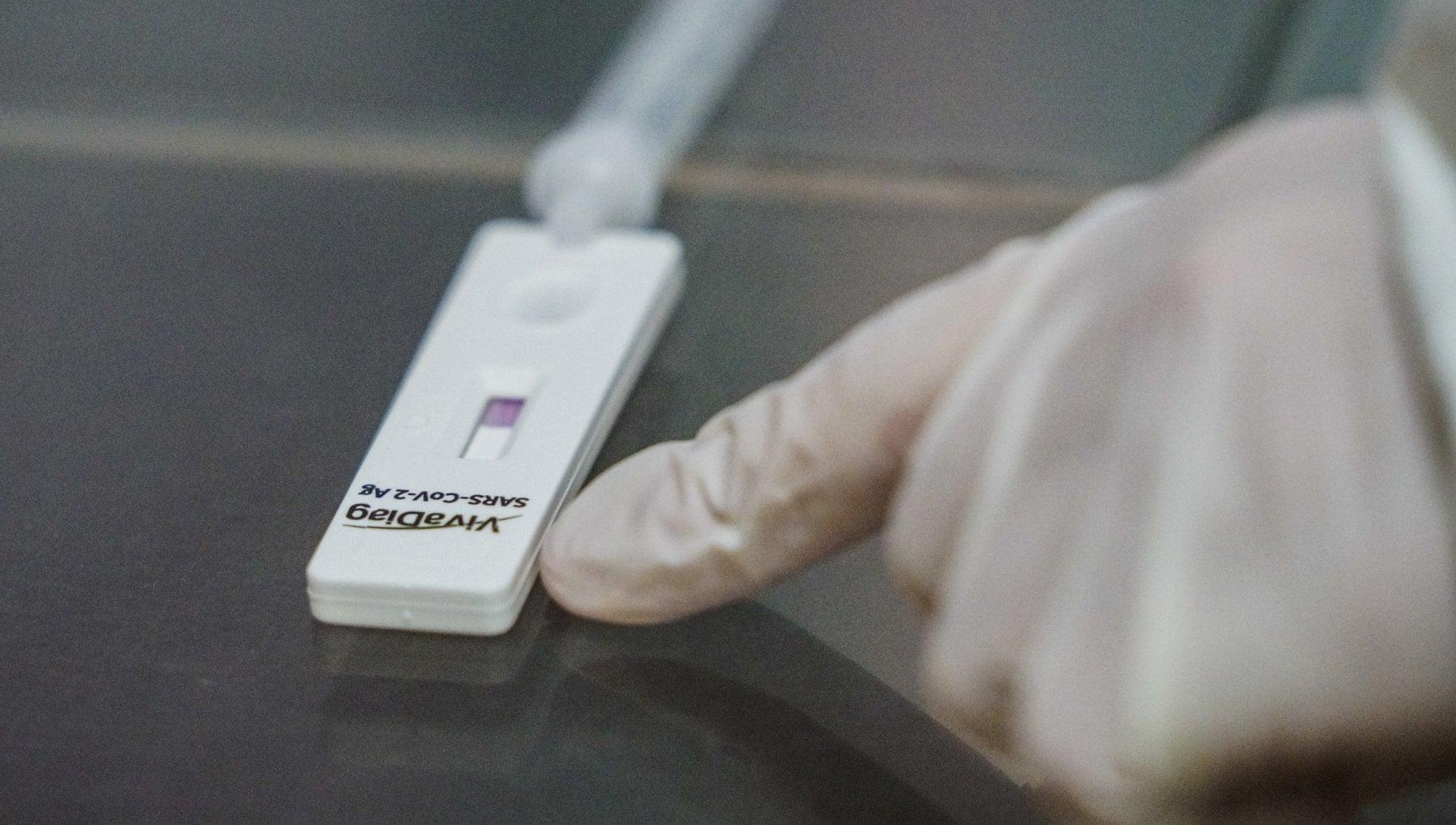 Coronavirus la svolta dei test fai da te per dire addio alle file ai drive in