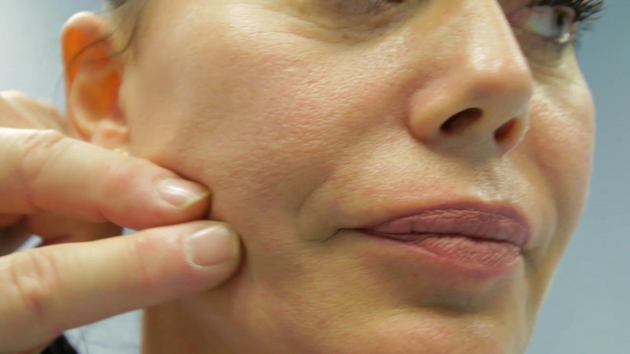 Cosi la pandemia spinge la chirurgia estetica Lo smart working in video ci fa notare di piu i difetti