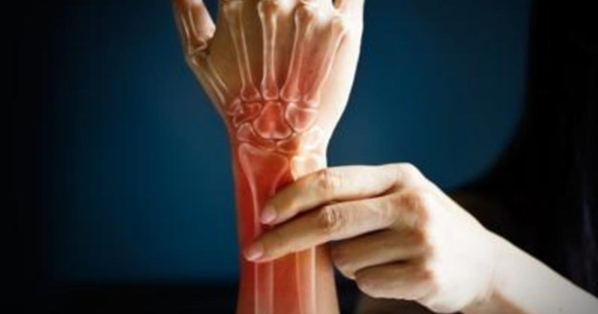 Farmaci artrite reumatoide rimborsabilita Aifa per trattamento AbbVie