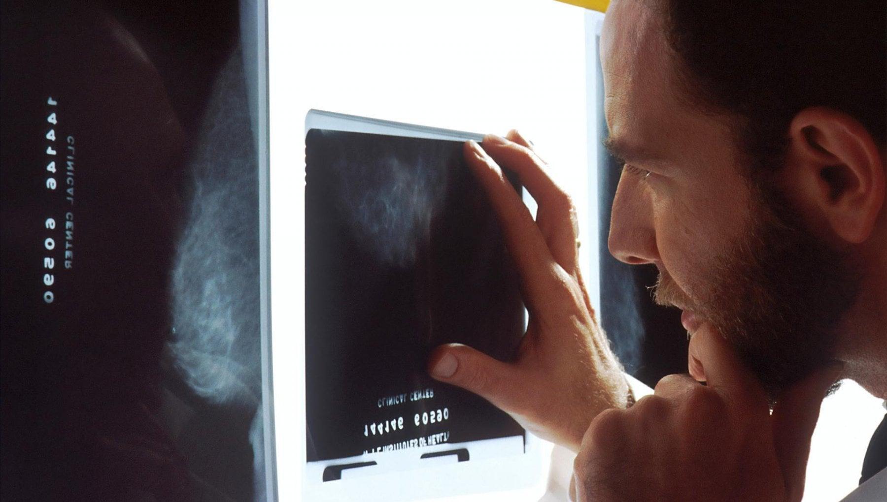 Salute seno cosi Covid ha nascosto 2000 tumori. E ritardato le cure