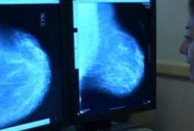 Tumori Europa Donna test genomici cancro seno subito disponibili in tuttItalia